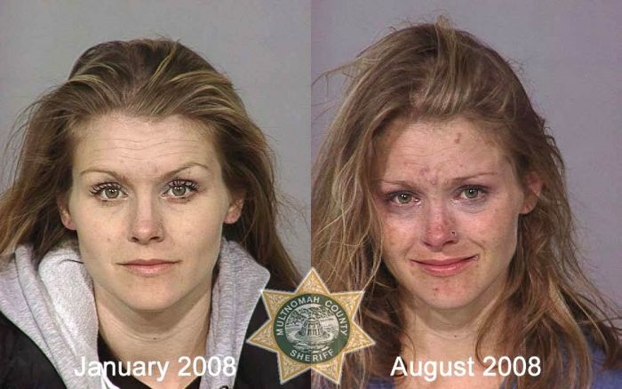 After pictures before and meth